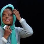 Víctima de un ataque con ácido gana 35.000 euros en '¿Quién quiere ser millonario?'