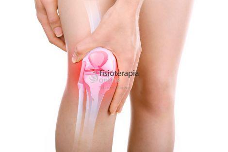 Qué es una bursitis de rodilla y por qué se produce? | Fisioterapia ...